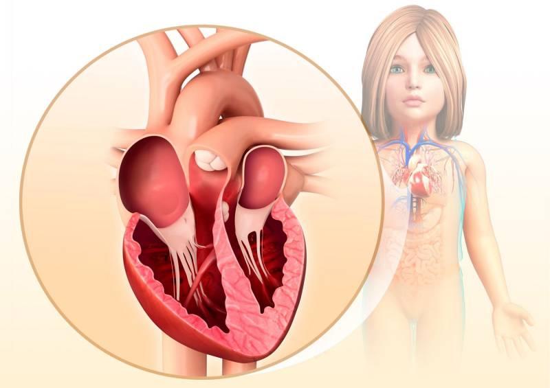 Illustrazione delle camere del cuore di un bambino.